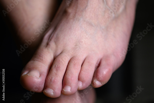 Fotomural  Close up of shamed woman hiding her altlete's foot fungus infection