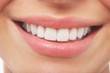 Woman Smiling With Prefect White Teeth