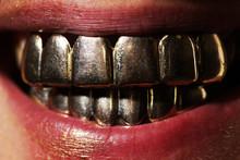 Golden Smile. Man Laughing In Gold Teeth. Expensive Close Up Man Smile With Gold Teeth. Gold Metallic Teeth. Mens Golden Smile Close Up.