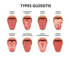 Types Glossitis. Tongue Diseas...