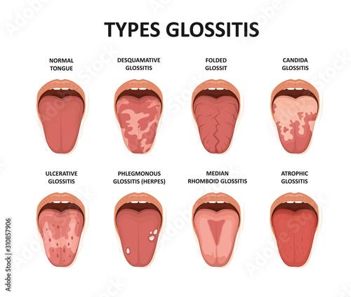 Types glossitis. Tongue disease illustration Wallpaper Mural