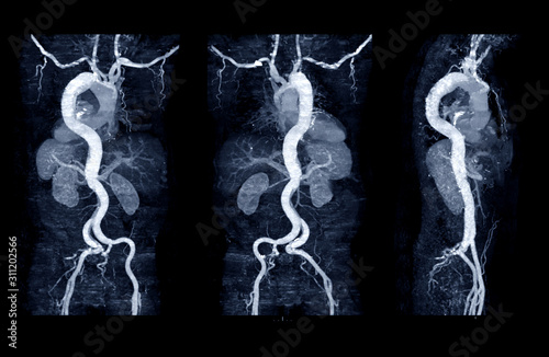 Collection of CTA whoe aorta with curve MPR technique showing abdominal aorta and left, right iliac artery showing aortic dissection Canvas Print