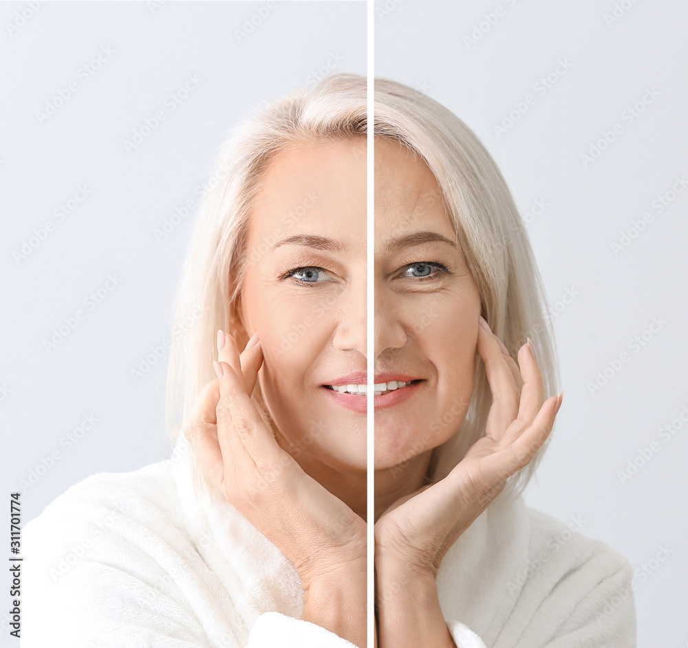 Fototapeta Comparison portrait of mature woman after and before filler injection on light background