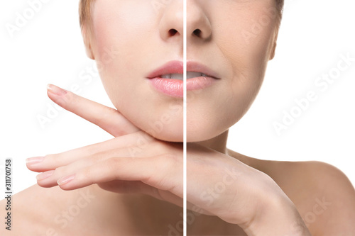 Young woman after and before filler injection on white background