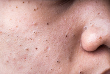 Ugly Pimples Blackheads On Che...