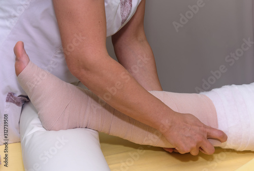 Foto Lymphedema management: Wrapping leg using multilayer bandages to control Lymphedema
