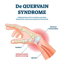 De Quervain Syndrome Vector Illustration. Labeled Thumb Inflammation Scheme