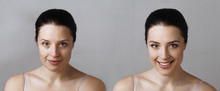 Comparison Photo Of Woman With...