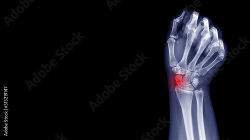 Photo Film X-ray wrist radiograph show carpal bone broken (scaphoid fracture) from falling