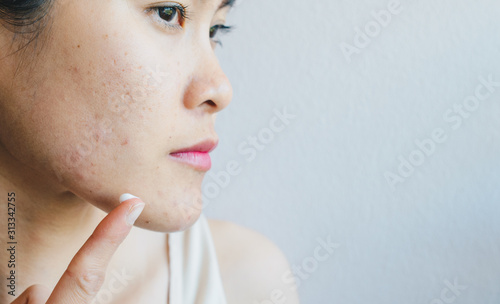 Photo Portrait of young Asian woman having acne problem