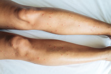 Female Legs With Many Red Spot...