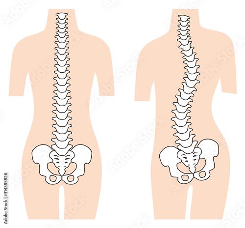 まっすぐな背骨 歪んだ背骨 脊椎側弯症 Wallpaper Mural
