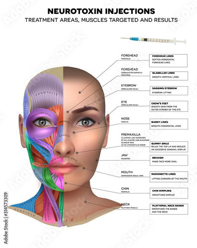Fotografia Neurotoxin injections treatment areas, muscles targeted and results
