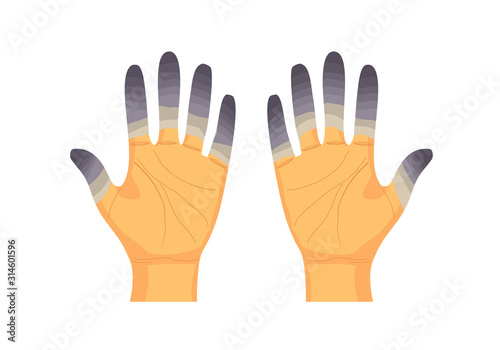 Vászonkép Frostbite fingers vector illustration on white background.
