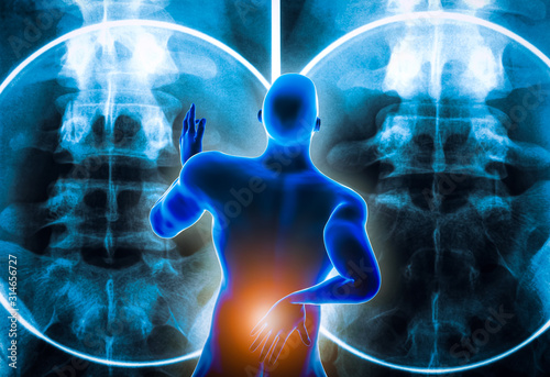 Photo Back view of a man suffering from an acute lumbar back pain or discal hernia or lumbago with backbone x-ray imagery in the background