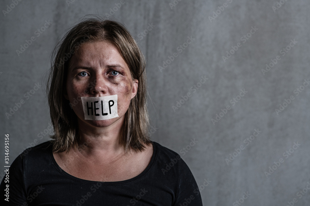 Fototapeta Beaten up woman victim of domestic violence and abusewith covered her mouth taped with the inscription
