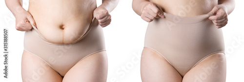 Fotografija Woman's body before and after weight loss, flabby belly after pregnancy, fat wom