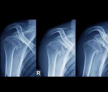 Injured Shoulder, X-rays