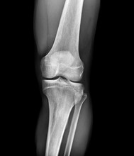 Normal Knee, X-rays