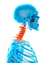 Human Cervical Spine Pain
