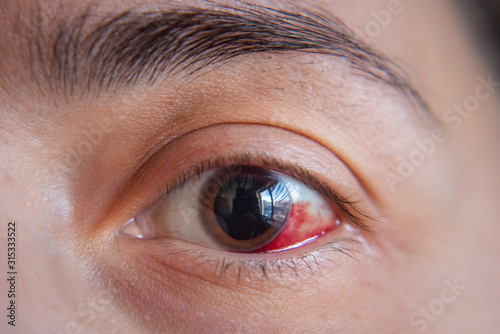 Photo Hemorrhage in the eye of a girl. Abrasion of the cornea. Macro.
