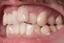 Close-up Of Very Crooked Teeth...