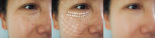 Image Before And After Anti-aging Dark Spot Melasma Pigmenttation Skin Facial  Treatment And Face Lift Rejuvenation Of Asian Woman. Problem Skincare And Health Concept.