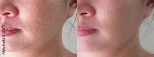 Fényképezés Image before and after spot melasma pigmentation skin facial treatment on face asian woman