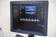 The doctor conducts an ultrasound examination.. Ultrasound examination of the thyroid gland