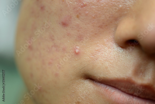 Young Asian woman showing her face with acne and moles Wallpaper Mural