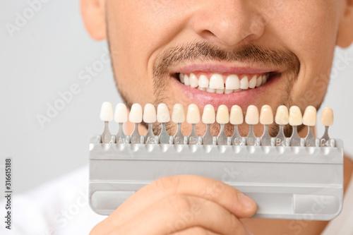 Fototapeta Man with teeth color samples on light background, closeup