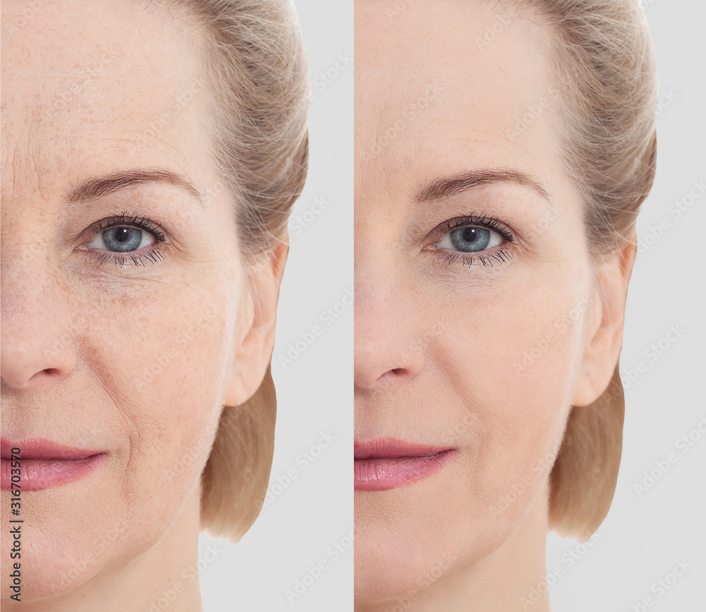 Fototapeta Middle age close up woman happy face before after cosmetic procedures. Skin care for wrinkled face. Before-after anti-aging facelift treatment. Facial skincare and contouring.