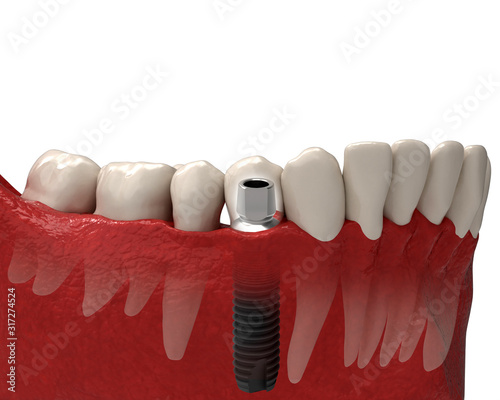 Human Jaw, Gum and Teeth with Installed Dental Prosthesis. Realistic 3D Illustration Isolated on White Background. #317274524