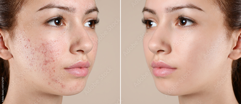 Fototapeta Teenage girl before and after acne treatment on beige background
