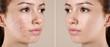 Leinwandbild Motiv Teenage girl before and after acne treatment on beige background