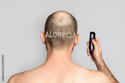 Photo Male alopecia