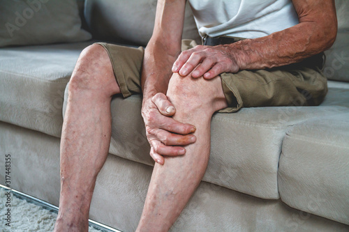 Pain in the legs and knees of an elderly seniorv Tableau sur Toile