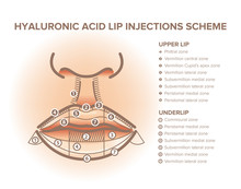Lip Injections. Lip Anatomy Po...