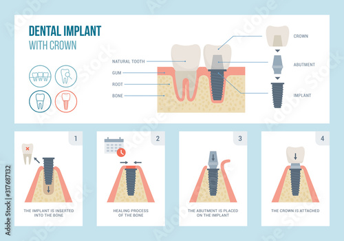 Photo Dental implant medical procedure and structure