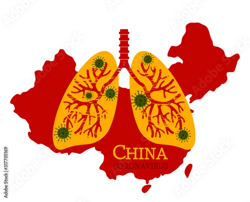 Human lungs are affected by pneumonia coronovirus in China. Canvas Print