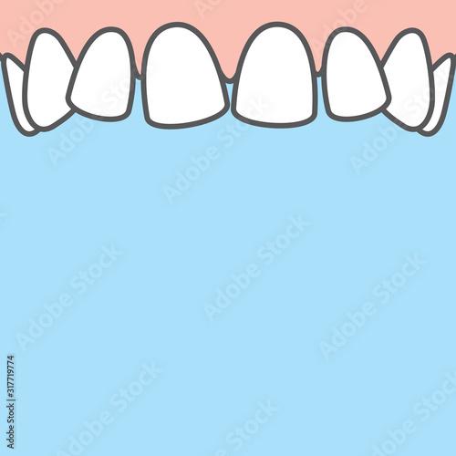 Photo Blank banner Upper askew teeth illustration vector on blue background
