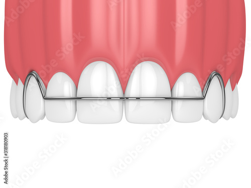 Stampa su Tela 3d render of jaw with orthodontic removable retainer