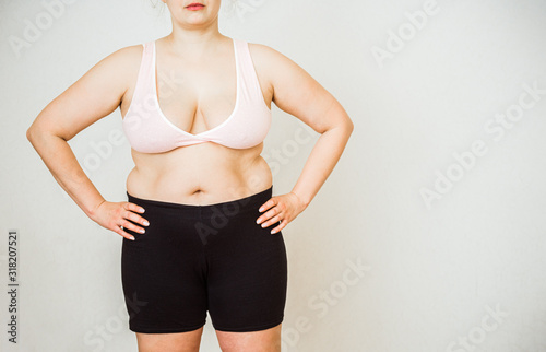 Fototapeta Woman with fat abdomen, overweight female stomach, stretch marks on belly closeu