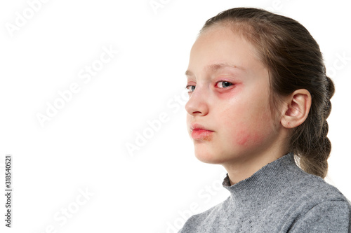 Allergic reaction, skin rash, close view portrait of a girl's face Canvas Print