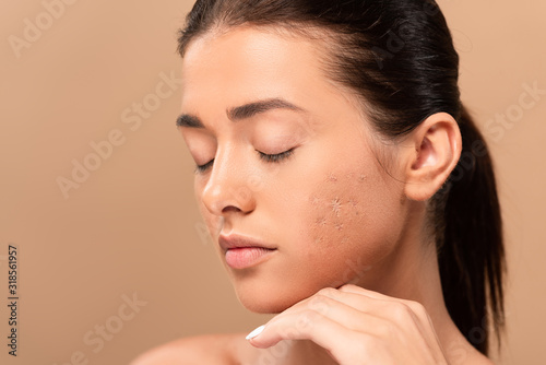 Photo young woman with closed eyes and blemished skin isolated on beige