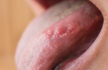 A Closeup Of A Diseased Tongue...