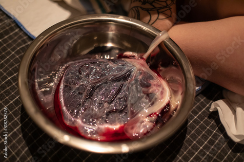 Fototapeta A close up detailed view of a bloody human placenta, maternal side, with intact