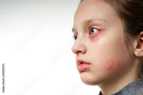 Photo Allergic reaction, skin rash, close view portrait of a girl's face