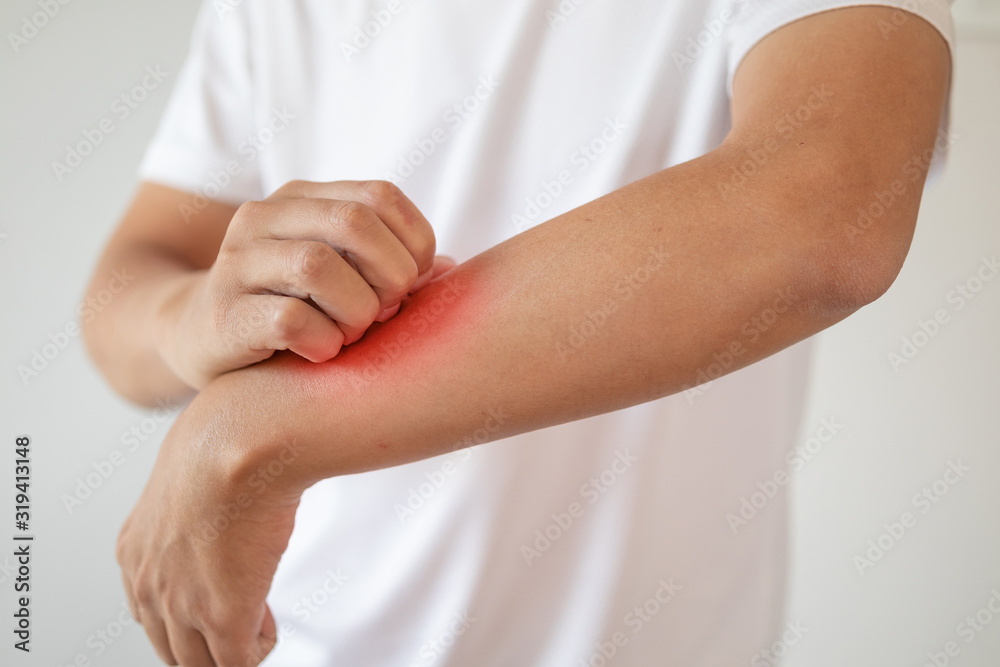 Fototapeta man itching and scratching on arm from itchy dry skin eczema dermatitis