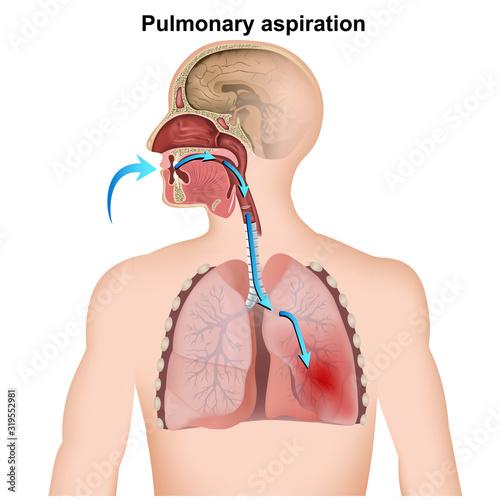 pulmonary aspiration medical infographic  on white background Canvas Print